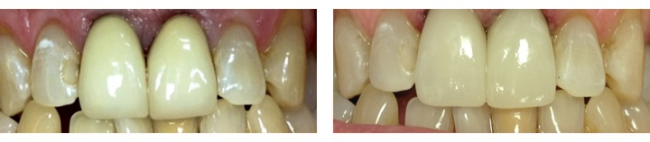 one-visit-crowns-before-after
