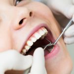 7 Reasons to Schedule a Dental Checkup